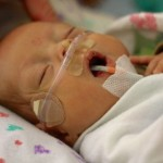 Nasal Cannula. 2515grams. 10.17.2012__1