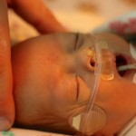 Nasal Cannula. 2515grams. 10.17.2012__2